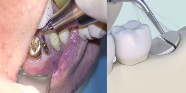 nhổ-răng-piezotome
