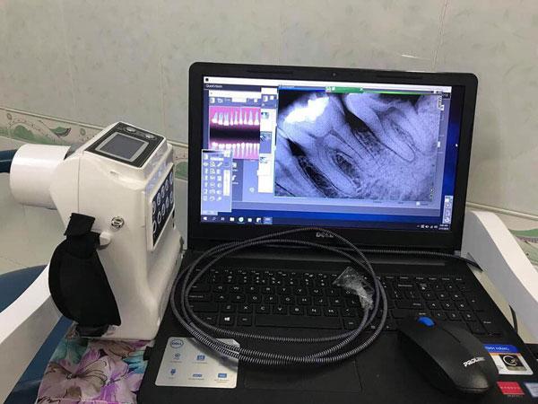 x-quang-sensor